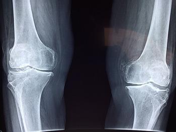 knee-2253047_640.jpg