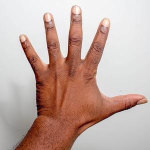 腱鞘炎・ばね指(手首や指の痛みの原因と対策)