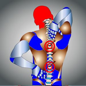 慢性的な背中の痛み
