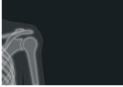 肩の痛み・四十肩